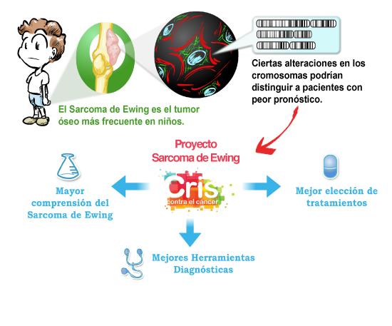 Sarcoma-Ewing2
