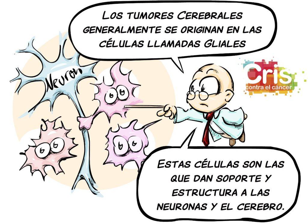 tipos de cáncer: cáncer cerebral