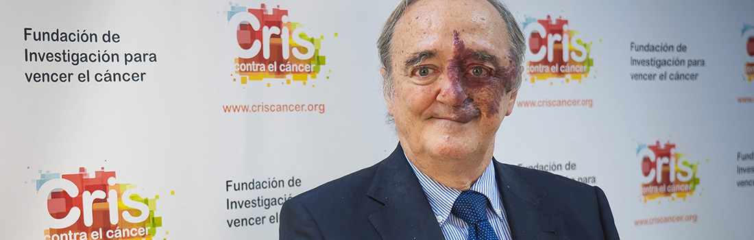 CRIS Pancreatic project with Dr. Barbacid